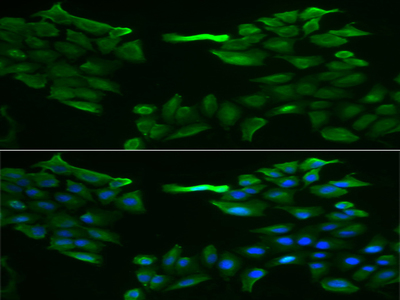 Anti-SLC5A6 antibody