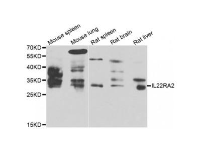 Anti-IL22RA2 antibody