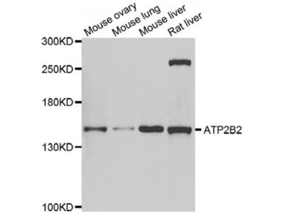 Anti-ATP2B2 antibody