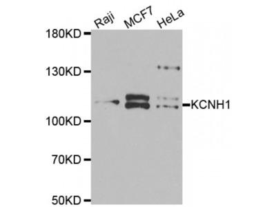 Anti-KCNH1 antibody