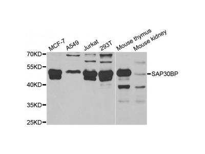 Anti-SAP30BP antibody
