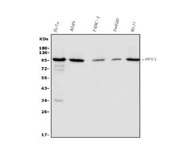 Anti-Glucocorticoid Receptor/NR3C1 Picoband Antibody