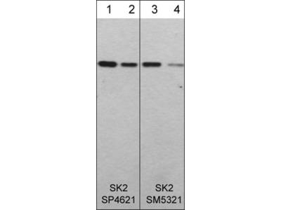 Sphingosine Kinase 2 (N-terminal region) Antibody