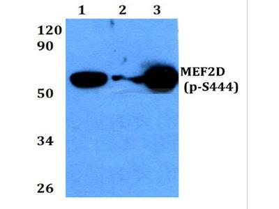 anti MEF2D pSer444