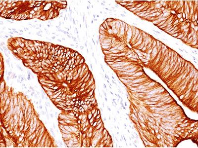 anti Cytokeratin 8