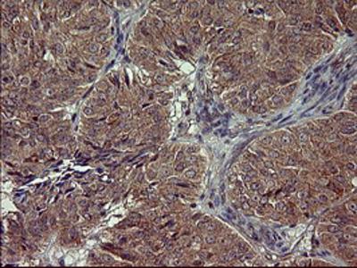 POMC / Proopiomelanocortin Monoclonal Antibody