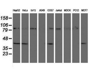 CRYZL1 Monoclonal Antibody