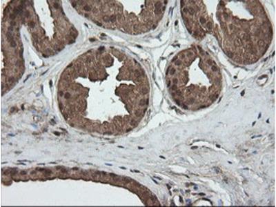 CRYAA / Alpha A Crystallin Monoclonal Antibody