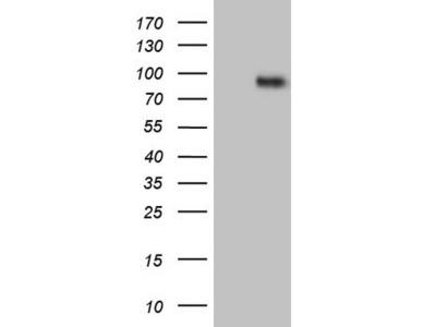 CFI / Complement Factor I Monoclonal Antibody