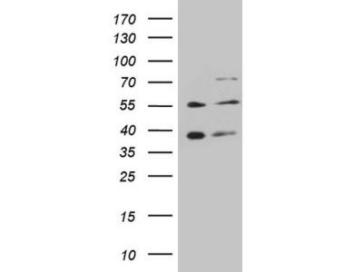 GRK4 Monoclonal Antibody