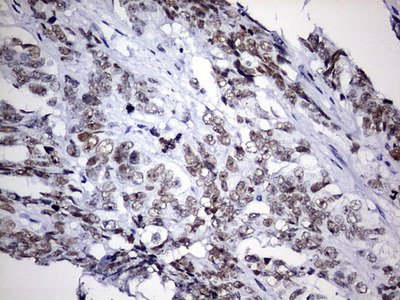 EZH2 Monoclonal Antibody