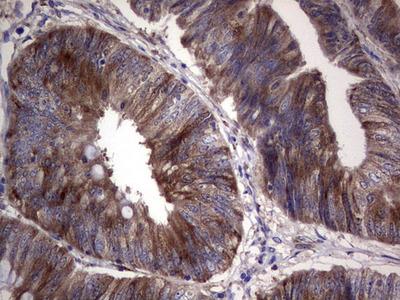 R1 / RRM1 Monoclonal Antibody