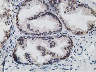 15-PGDH / HPGD Monoclonal Antibody