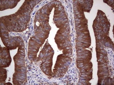 GARS / Glycyl tRNA Synthetase Monoclonal Antibody