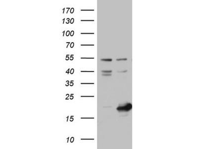 NUDT10 Monoclonal Antibody