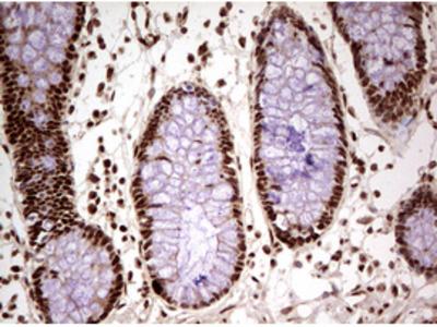 FBXW7 / FBW7 Monoclonal Antibody