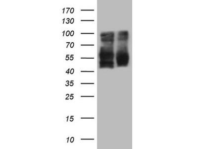 LRRTM1 Monoclonal Antibody