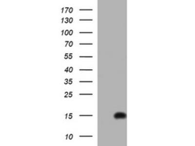 MSMB / MSP Monoclonal Antibody