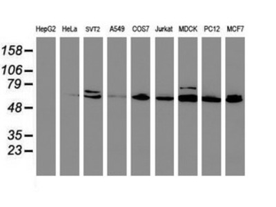 CYP2B6 Monoclonal Antibody