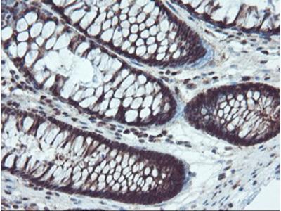 TRAIP / TRIP Monoclonal Antibody