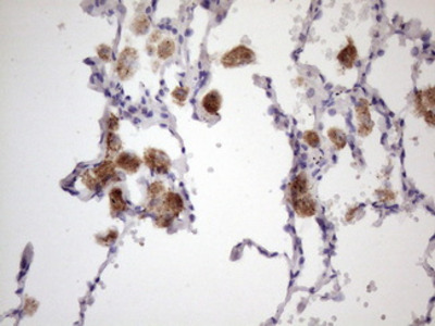 ALOX12 / 12 Lipoxygenase Monoclonal Antibody