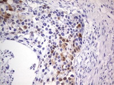 p16INK4a Monoclonal Antibody