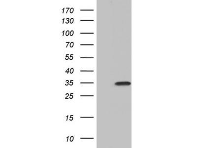 PAFAH1B3 Monoclonal Antibody