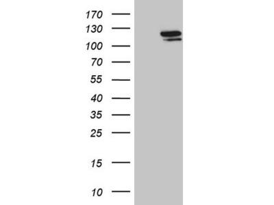 Streptococcus pyogenes CRISPR-associated endonuclease Cas9/Csn1 Antibody