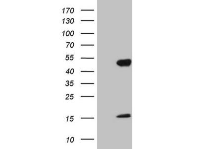 NR2E3 / PNR Monoclonal Antibody