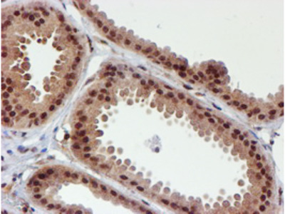 CYP17 / CYP17A1 Monoclonal Antibody