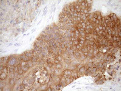 FSCN1 / Fascin Monoclonal Antibody