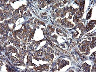 TUBA1A / Tubulin Alpha 1a Monoclonal Antibody