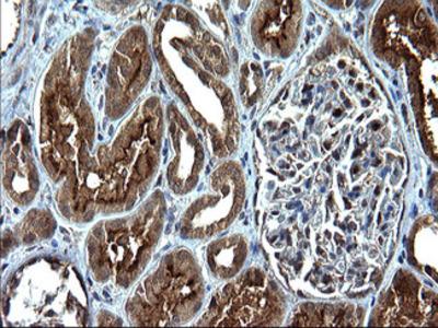 SCP2 / SCPX Monoclonal Antibody