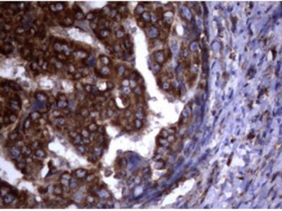 PIK3C2A Monoclonal Antibody