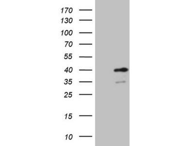 SPT3 / SUPT3H Monoclonal Antibody