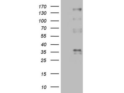 PROCR / EPCR Monoclonal Antibody