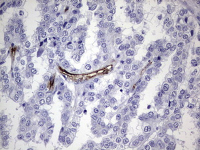 CDH4 / R Cadherin Monoclonal Antibody