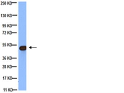 Anti-Tubulin Antibody, beta, clone KMX-1