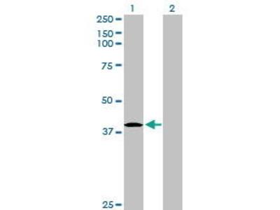 Rabbit Anti-HHEX Antibody
