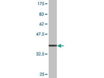 Mouse Anti-PHTF1 Antibody