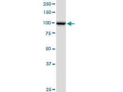 Mouse Anti-NOP14 Antibody