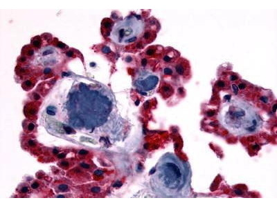 Rabbit Anti-CRHR2 Antibody