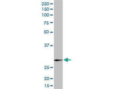 Rabbit Anti-SNAP 29 Antibody
