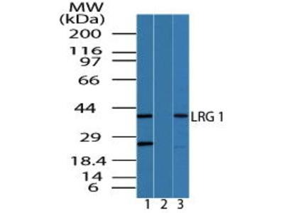 Rabbit Anti-Leucine-rich alpha-2-glycoprotein Antibody