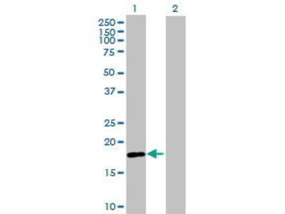 Mouse Anti-RING Finger Protein 170 Antibody
