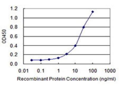 Mouse Anti-CTBS Antibody