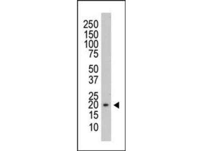 Mouse Anti-PRL3 Antibody