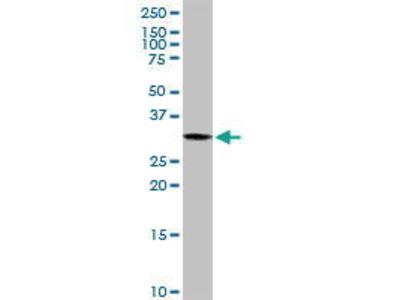 Rabbit Anti-PYCR1 Antibody