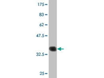 Mouse Anti-PCP4 Antibody