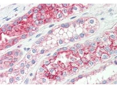 Rabbit Anti-TMPRSS3 Antibody